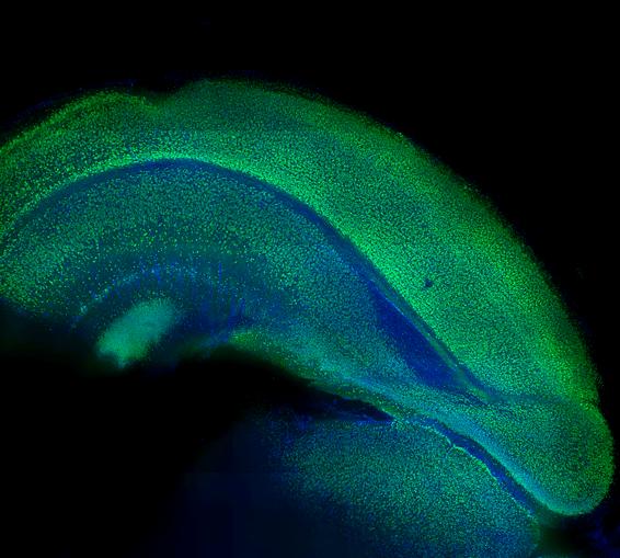 Mouse Brain NeuN